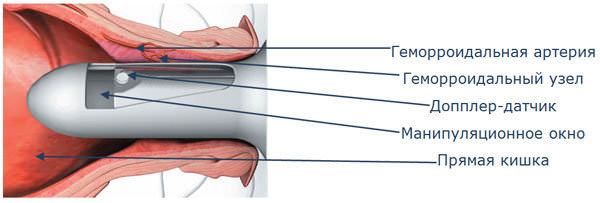 дезартеризация геморроидального узла