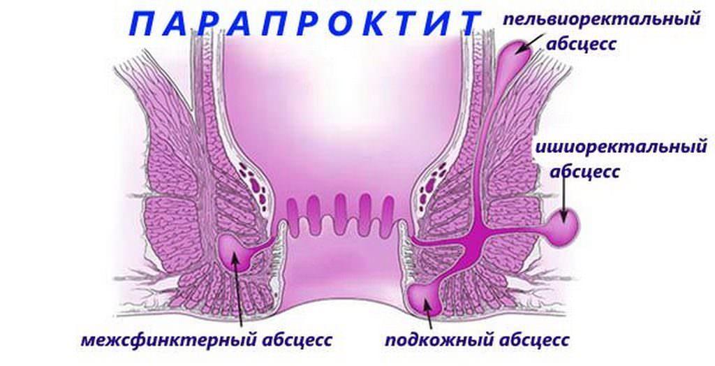 парапроктит