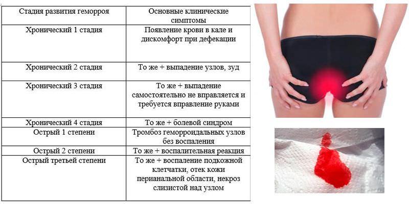 Наружный геморрой при беременности чем лечить (мази свечи) отзывы