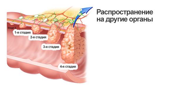 Рак прямой кишки в домашних условиях