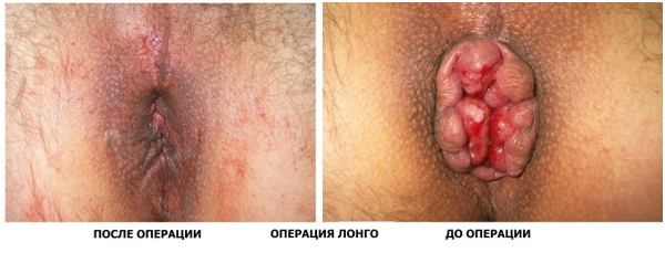 до и после геморроидэктомии