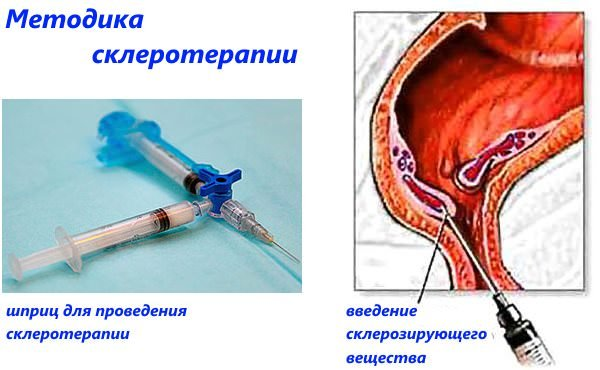 методика склеротерапии