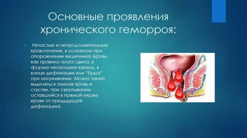 Симптомы хронического геморроя