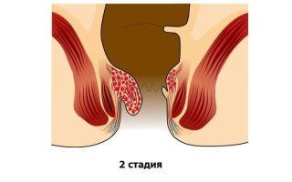 Геморрой 2 степени: симптомы, лечение и профилактика
