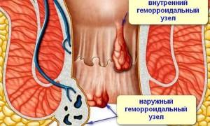 Наружный геморрой: причины, симптомы и лечение