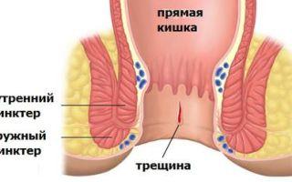 Лечение трещин при геморрое