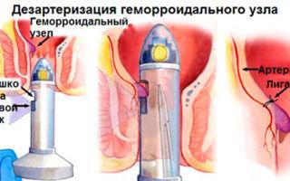 Дезартеризация геморроидальных узлов – лучшая операция для лечения геморроя