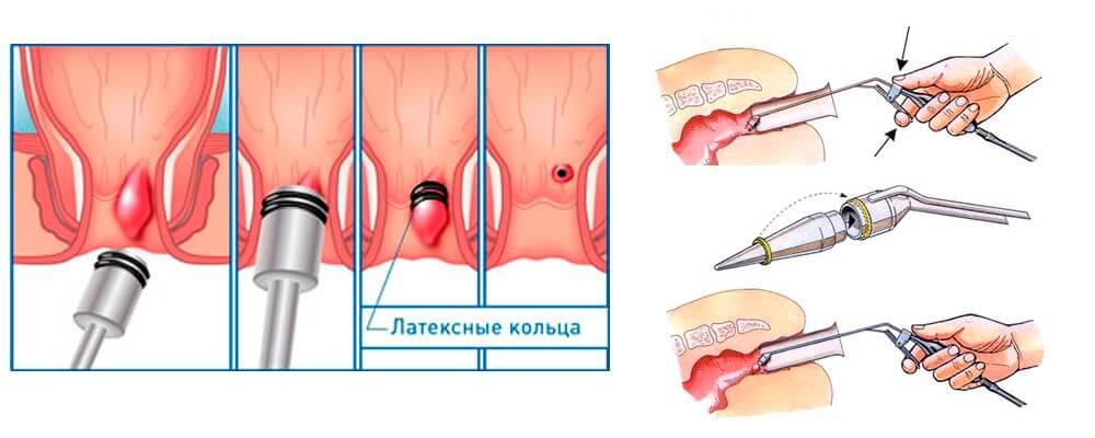 Чем лечить геморройную шишку в заднем проходе