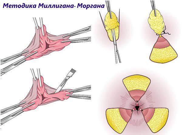 операция миллиган-моргана