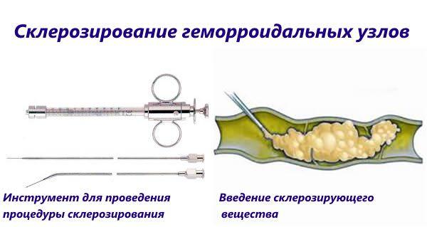 склерозирование геморройных шишек