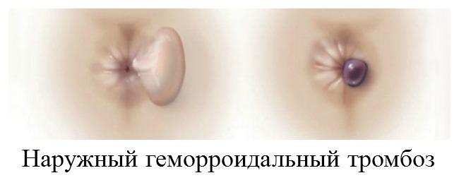 наружный геморроидальный тромбоз