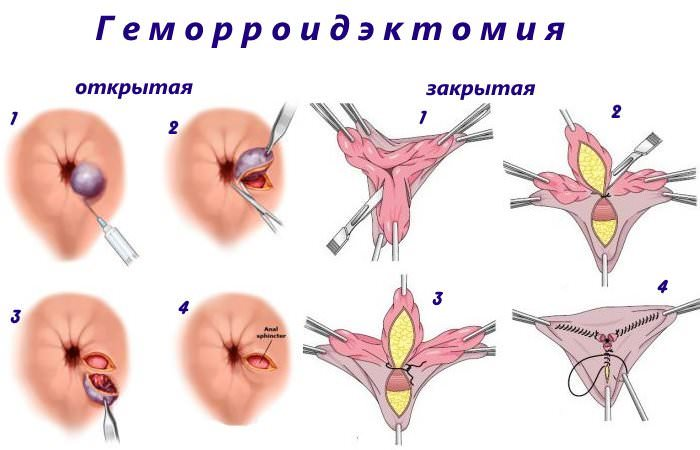 виды операции - геморроидэктомия