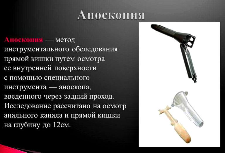 Аноскопия
