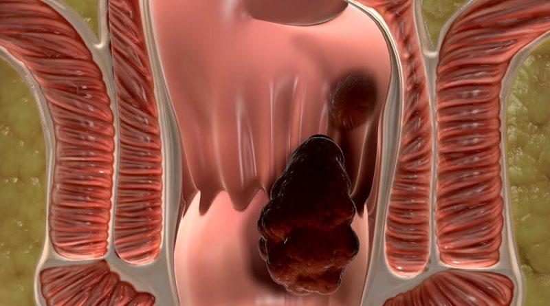 геморроидальный узел