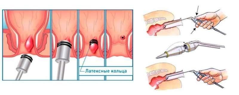 лигирование геморроидальных узлов