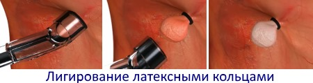 лигирование латексными кольцами