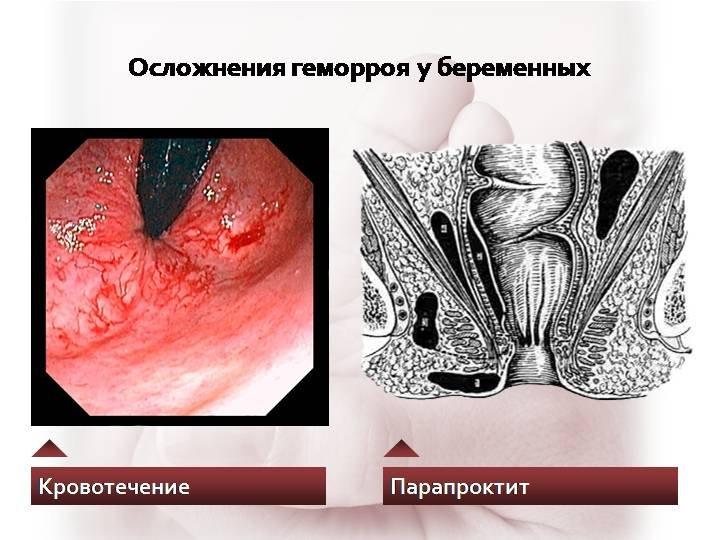 осложнения геморроя у беременных